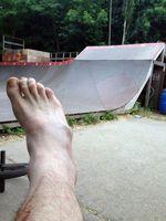Stephan Götz hat sich im Mellowpark den Mittelfußknochen gebrochen