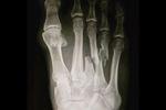 kelly-slater-broken-foot